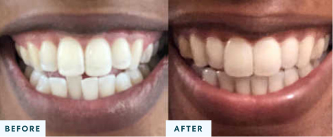 Class I Malocclusion before and after