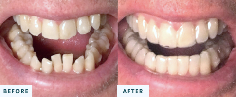 Class II Malocclusion before and after