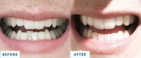 Class III Malocclusion before and after