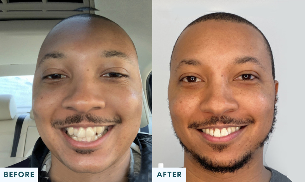 LeAndre T. before and after treatment